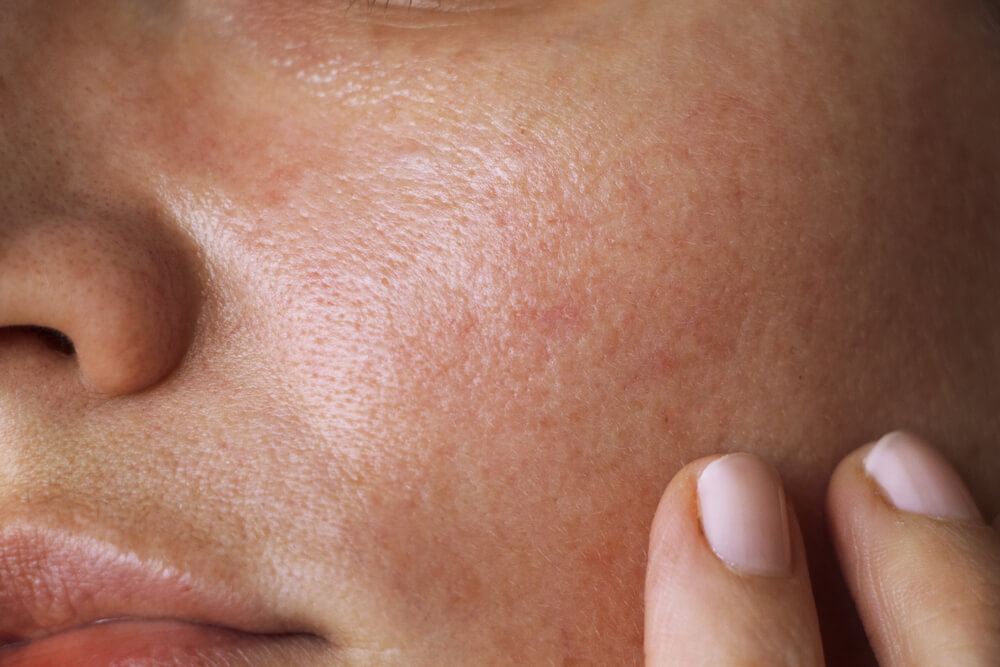 Benefits of laser treatment for skin pigmentation